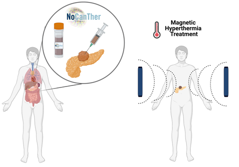Key role of BioKeralty in the NoCanTher project which tests the implementation of magnetic nanoparticles in the treatment of pancreatic cancer